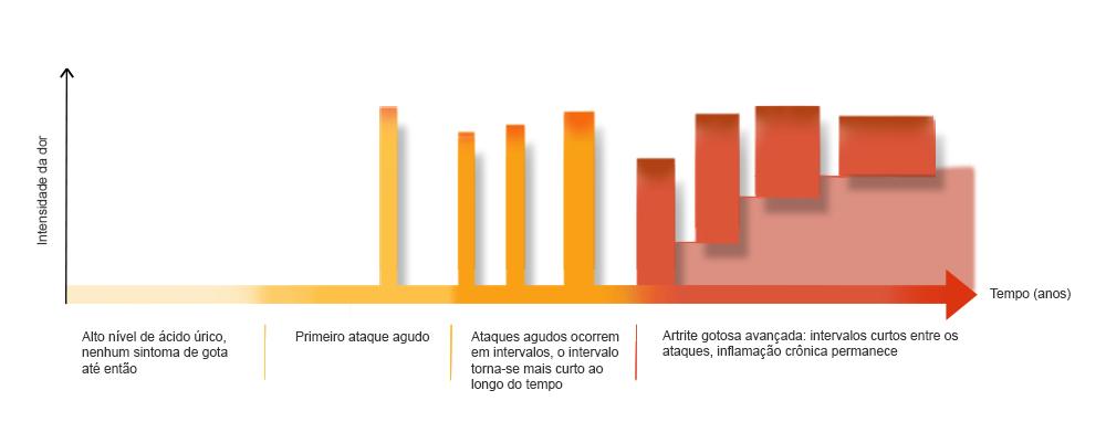 gota-e-artrite-gotosa-mal-tratadas