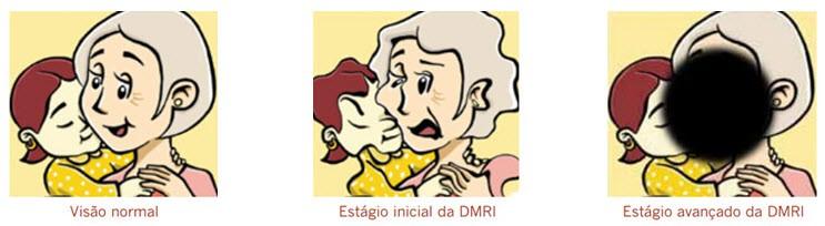 DMRI - estágios do problema