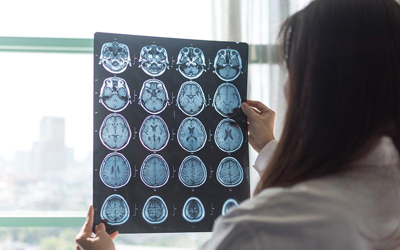 EM-4-indicadores-da-atividade-de-esclerose