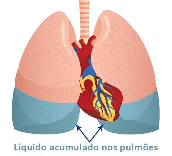 líquido acumulado nos pulmões